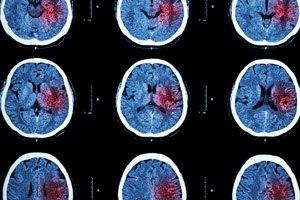 Schlaganfall - Gehirn